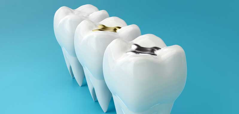about dental fillings