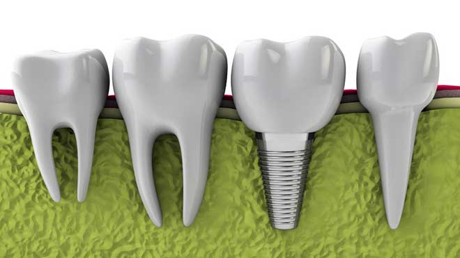 Reasons for Dental Implants Failure.