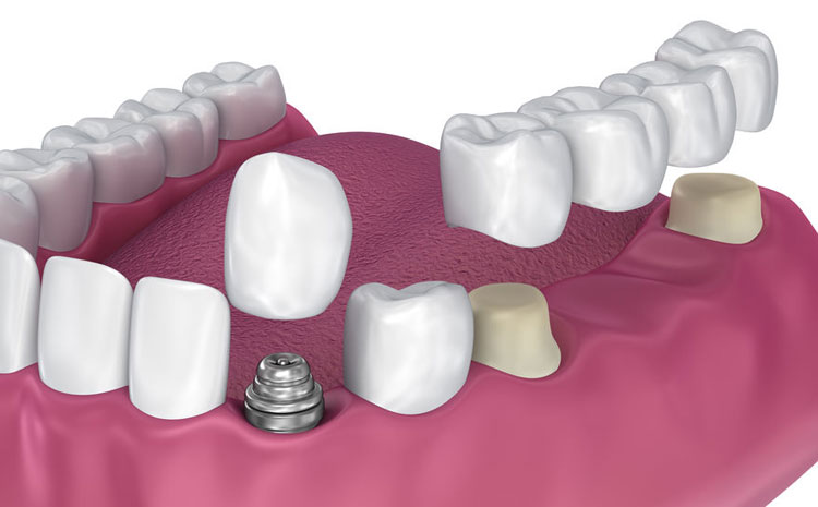 Suitable Candidate For Dental Implants