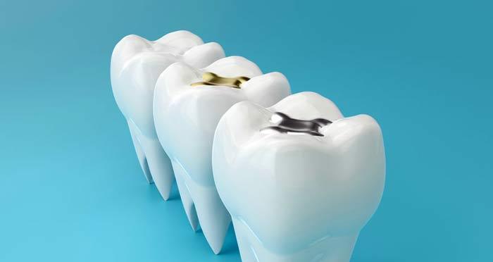 dental fillings falling out
