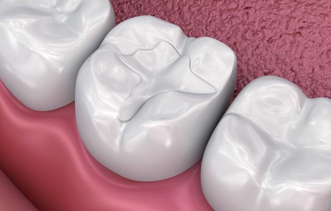 Type of Dental Fillings