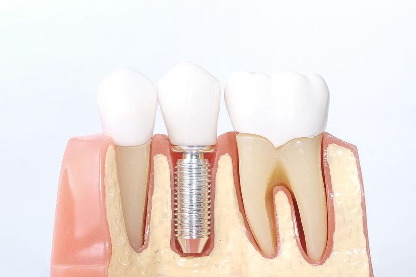 Can Dental Implants Help