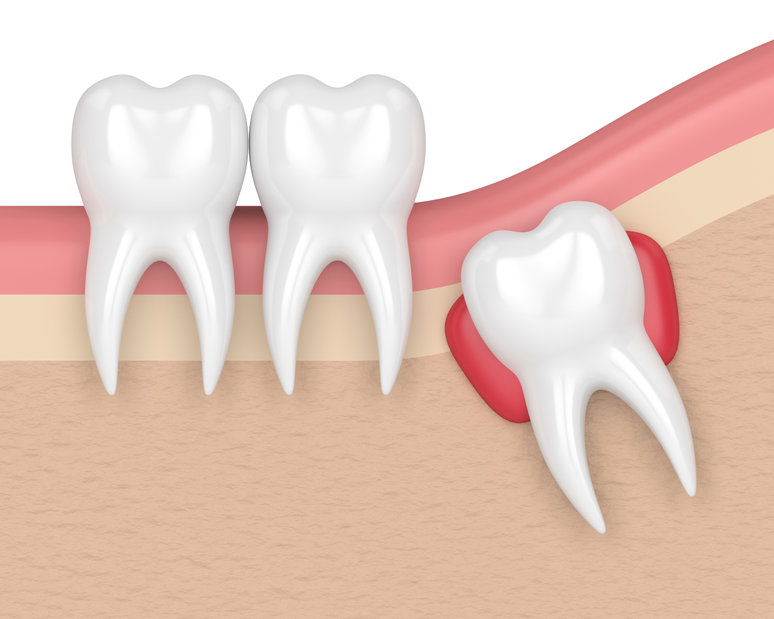 Need to Extract Your Wisdom Tooth